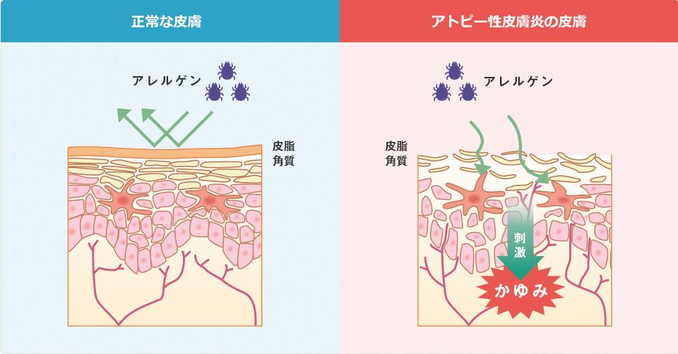 正常な皮膚とアトピー性皮膚炎の皮膚の比較